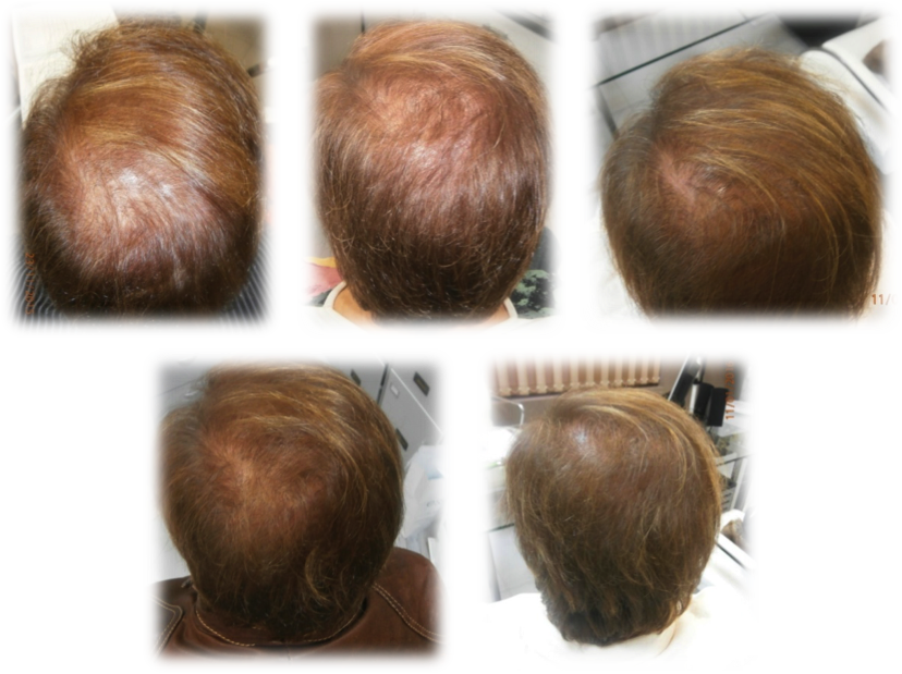 Stem Cells Therapy For The Treatment Of Androgenetic Alopecia And